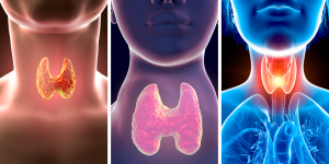 12-week thyroid program banner with functional medicine approach
